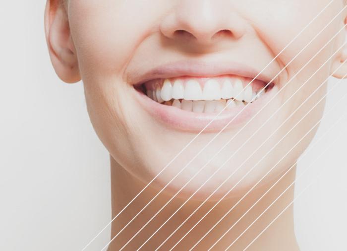 clínica dental tratamientos ortodoncia prevención