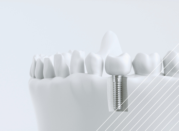 clínica dental implate dental