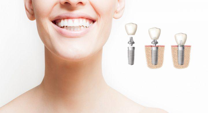 ¿Qué Cuidados necesitan los Implantes Dentales?