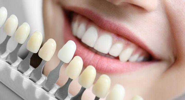 Todo lo que debemos saber sobre el Blanqueamiento Dental