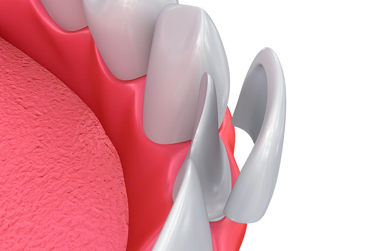 Consejos para el mantenimiento de las Carillas Dentales